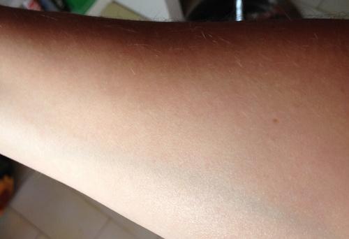 il mio braccio subito dopo aver applicato l'olio solare Nuxe